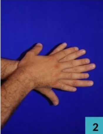 Dos des mains